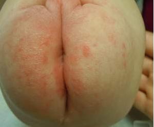 Adult itchy butt rash